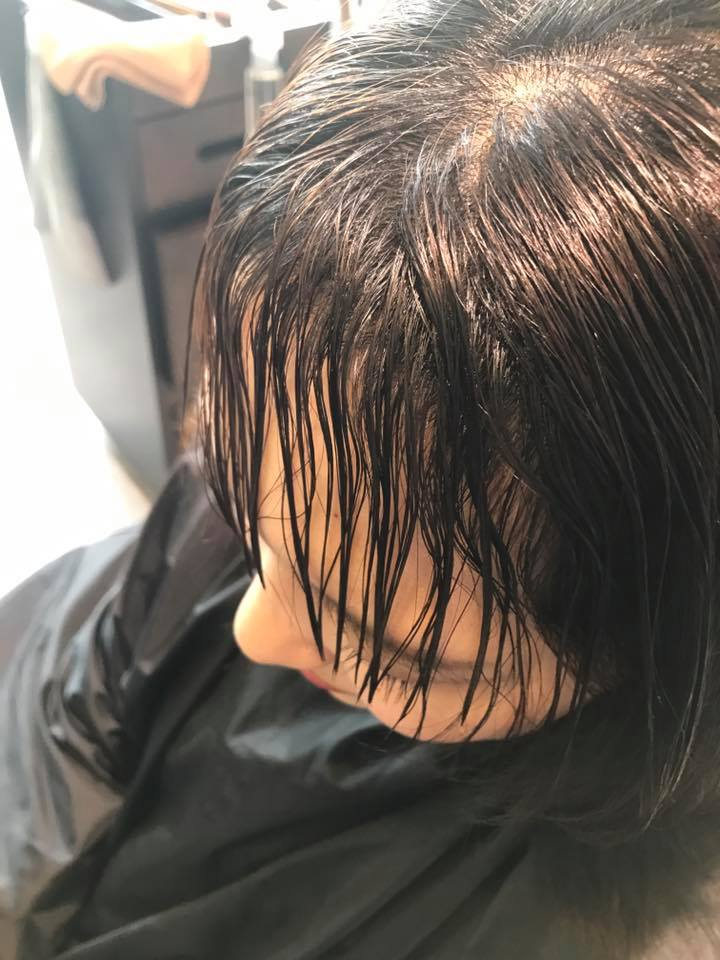 施術写真。2cmの複雑な履歴の前髪ストレート。