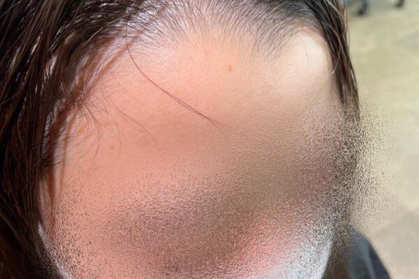 前髪に生え癖があって割れる!でも下ろしたいときはこんな形!