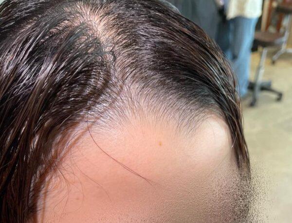 【スタイリング無しで治せます】パックリ分かれる前髪のつむじ!